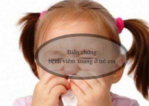 biến chứng bệnh viêm xoang ở trẻ em