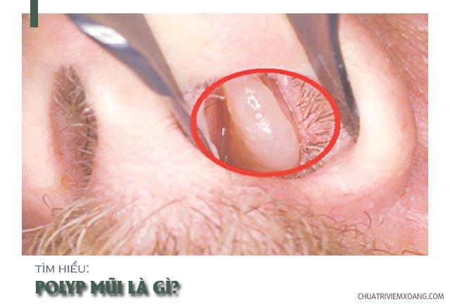 polyp mũi là gì