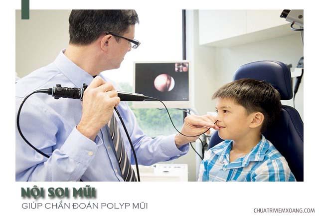 polyp mũi xoang