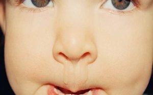 chảy nước mũi khi bị bệnh viêm mũi