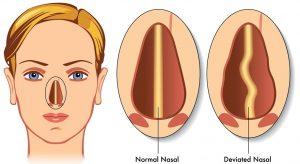 bệnh vẹo vách ngăn mũi