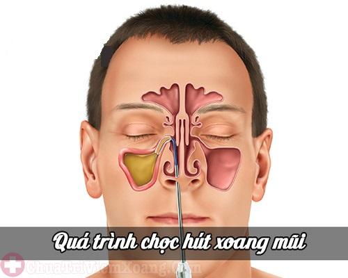Quá trình chọc hút dịch mủ xoang ở mũi