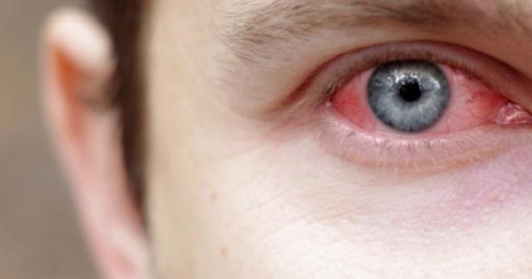 Viêm mũi dị ứng gây bệnh viêm ở mắt