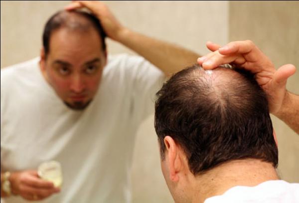 Hít khói thuốc lá gây rụng tóc ở nam
