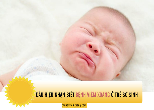triệu chứng viêm xoang ở trẻ sơ sinh