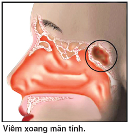 chua-tri-viem-xoang-man-tinh