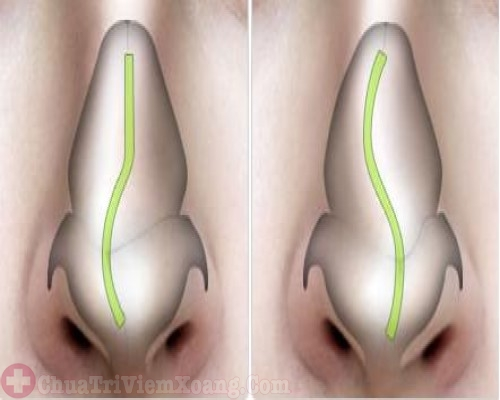 Viêm xoang vẹo vách ngăn mũi có nên mổ không