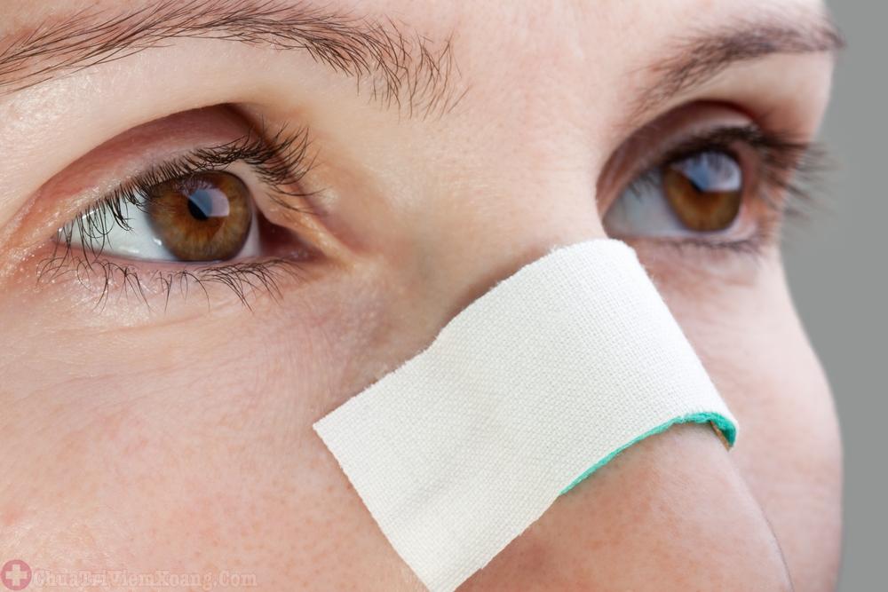Chấn thương mũi gây viêm đa xoang