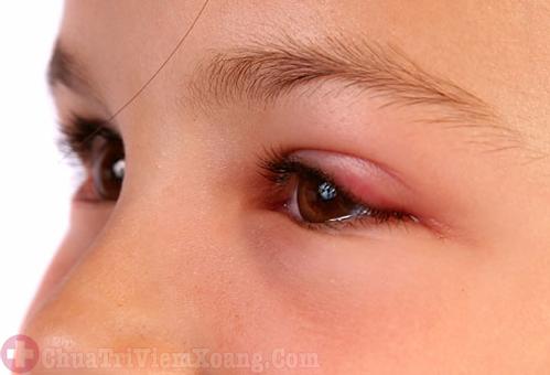 Viêm xoang sàng gây biến chứng viêm mí mắt