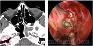 Hình ảnh chẩn đoán viêm xoang bằng công nghệ