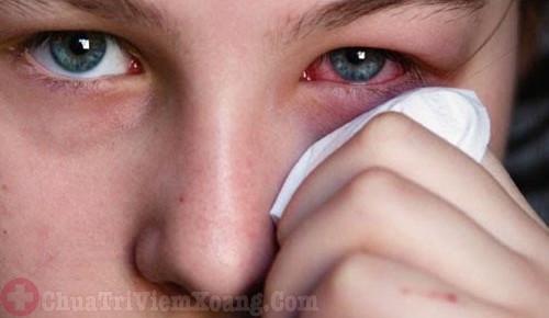 Biến chứng viêm sưng mắt do viêm xoang bướm