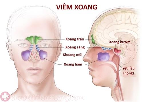 Viêm mũi dị ứng có thể gây biến chứng viêm xoang