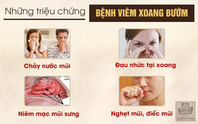 Những triệu chứng bệnh viêm xoang bướm
