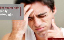 bệnh viêm xoang hàm