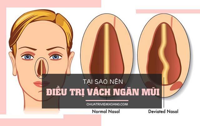 Điều trị vẹo vách ngăn mũi