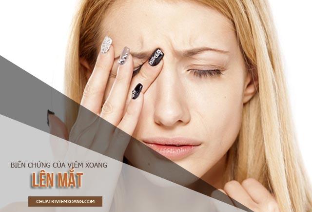 biến chứng viêm xoang lên mắt