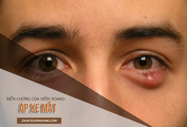 bệnh viêm xoang ảnh hưởng đến mắt