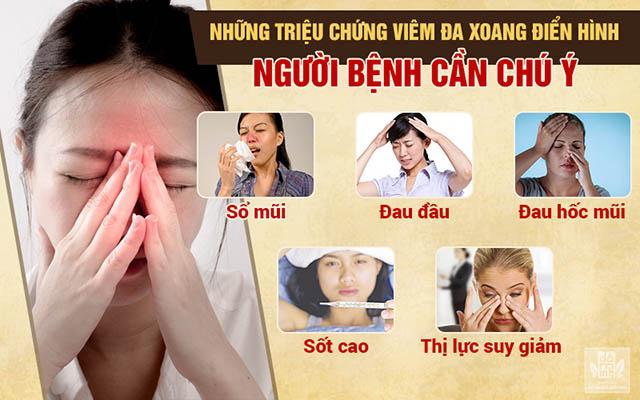 Những triệu chứng viêm đa xoang người bệnh cần chú ý