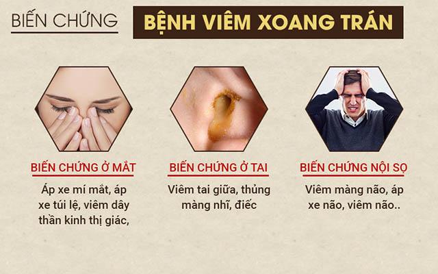 Phân biệt viêm xoang hàm, trán, bướm và cách chữa hiệu quả