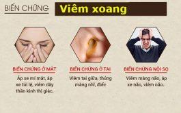 Lương y Đỗ Minh Tuấn chỉ ra 6 biến chứng nguy hiểm của viêm xoang