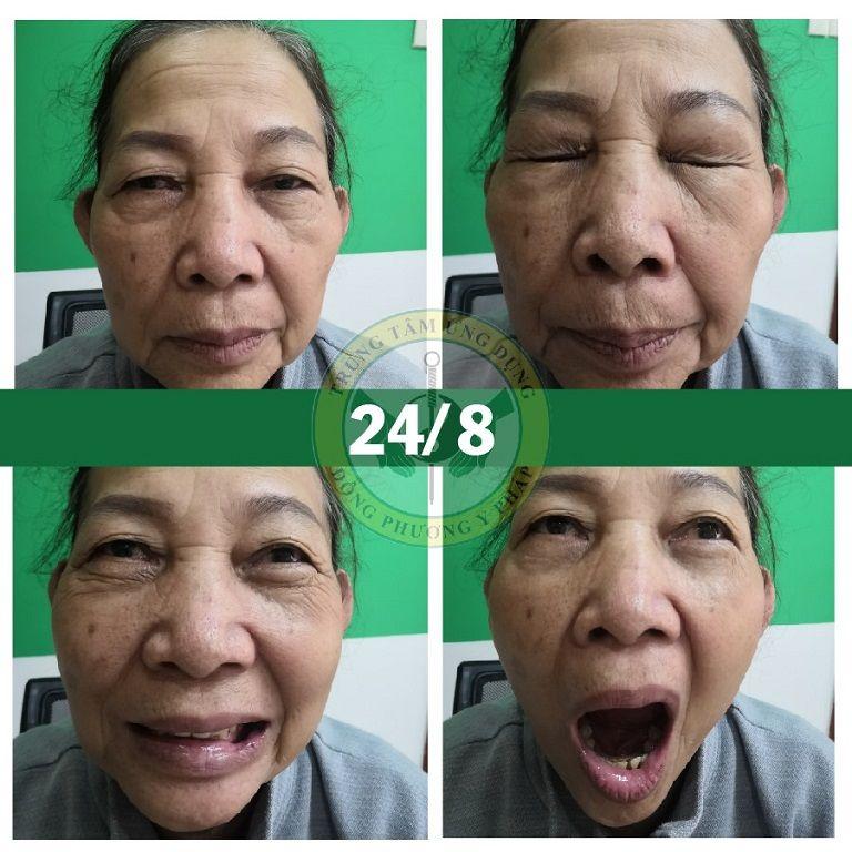 Hình ảnh cô Đỗ Thị Lá sau khi điều trị liệt dây thần kinh số 7 tại Trung tâm Đông phương Y pháp
