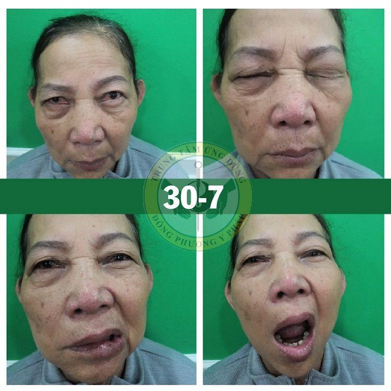Hình ảnh cô Đỗ Thị Lá trước khi điều trị